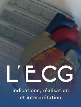L'ECG : indications, réalisation et interprétation