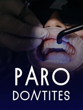 Diagnostic et prise en charge des parodontites